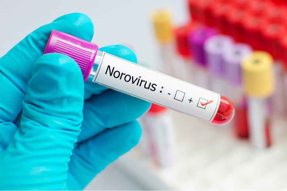 ノロウィルスはアルコール消毒が効かない!? この噂ってホントなの?