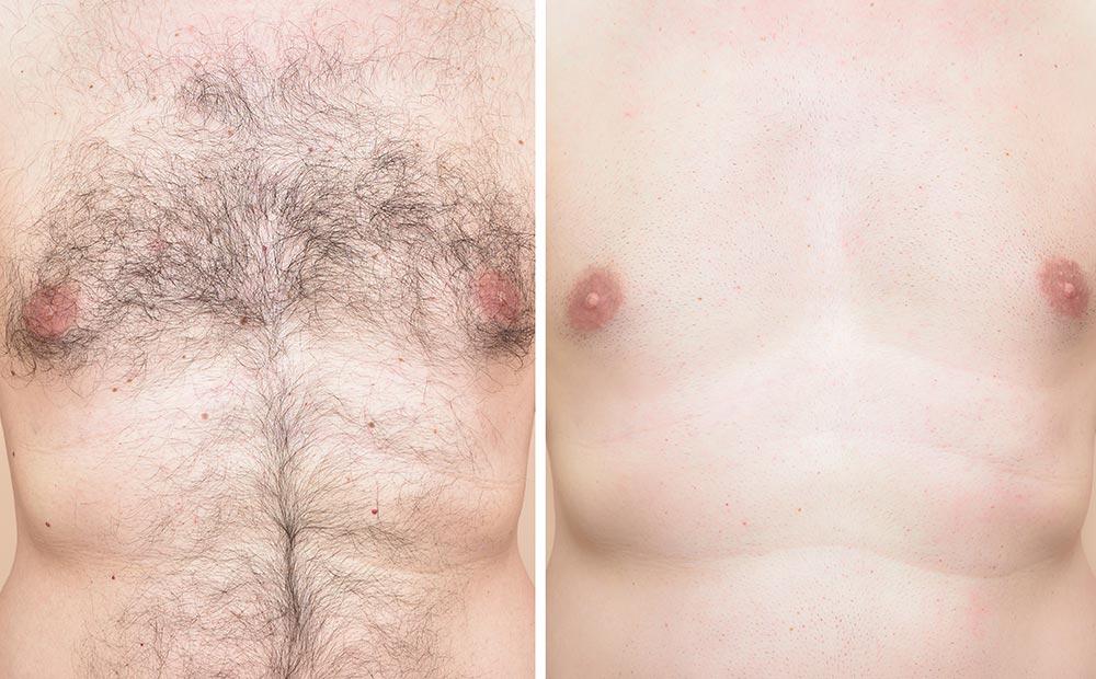 筆者が体験してわかった! 30代男が全身医療脱毛したら体臭が軽減した?